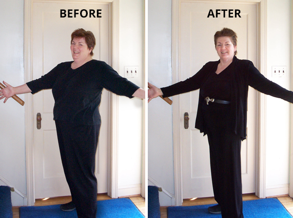 Judy before and after our weight-loss program